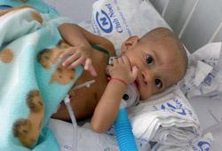 I bambini della Colombia ci chiedono aiuto | ilcantico.fratejacopa.net